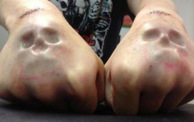 skull-implants-on-hands