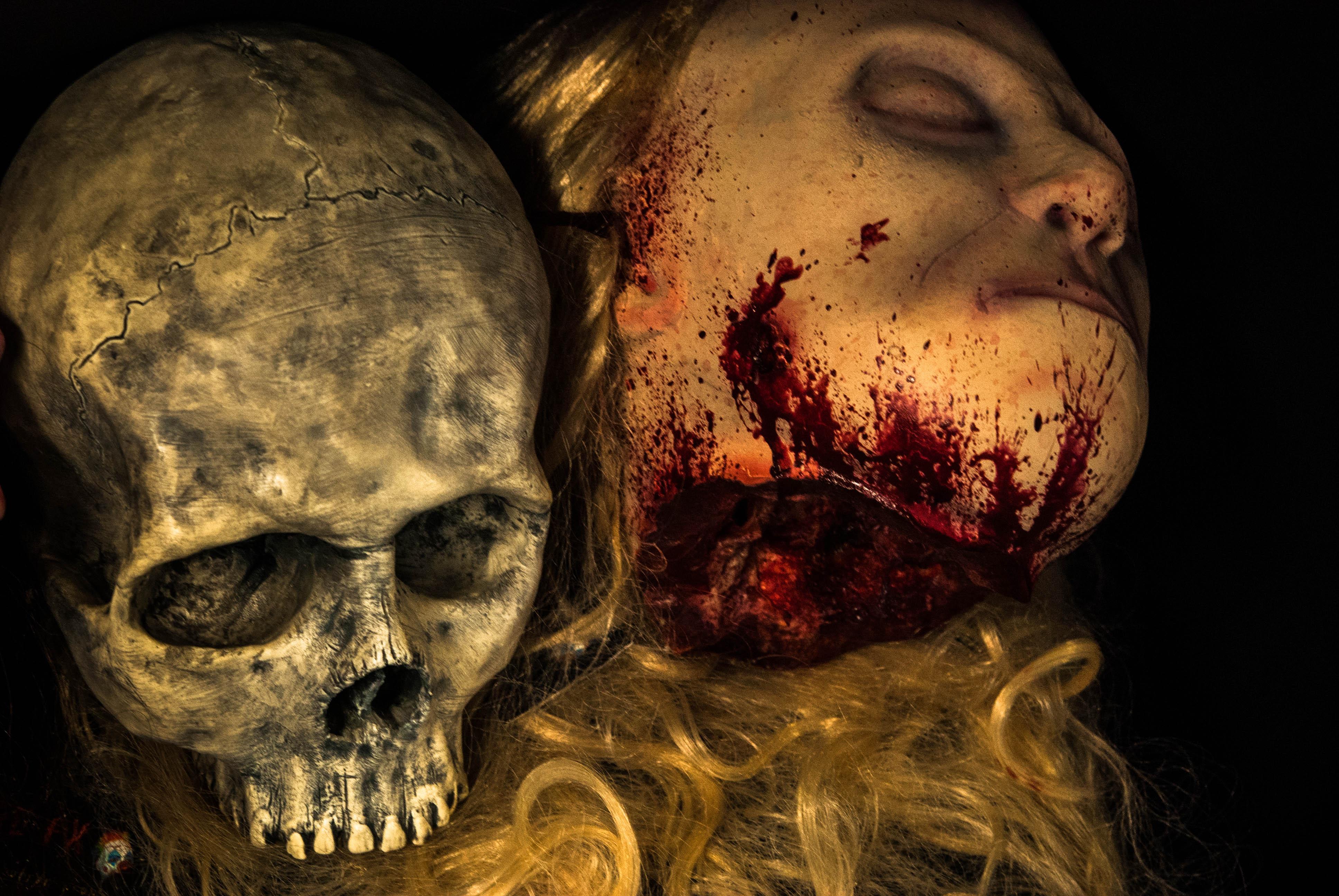 Model Francesca Burr has skull rebuilt after horror fall