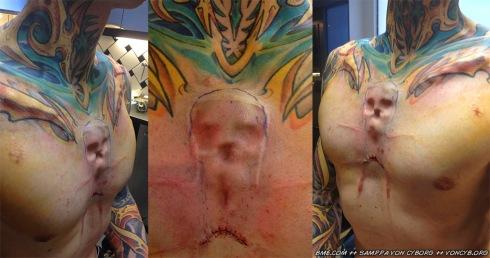 skull-implant