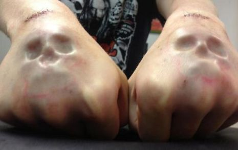 skull-implants-on-hands